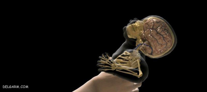 سندروم تکان دادن نوزاد