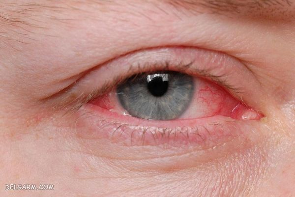 خارش چشم / چشم صورتی / بیماری چشم صورتی