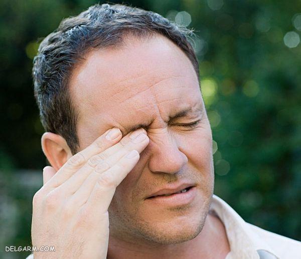 خارش چشم / تب یونجه / حساسیت چشم / خارش گوشه چشم