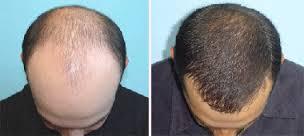 روش درمان ريزش مو  با ماينوكسيدیل و  آشنايي با اثرات و عوارض ماينوكسيديل