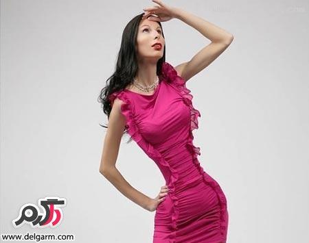 زن لاغر
