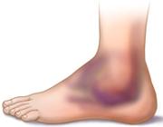 درمان بریدگی،خراشیدگی، کوفتگی و خارش پوست
