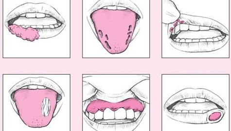 آفت دهان و راه های درمان