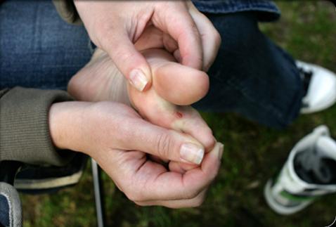 درمان زخم پا در بیماران دیابتی