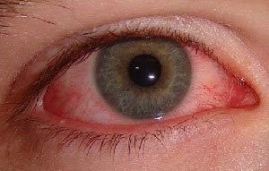 طرز تهيه سرمه چشم