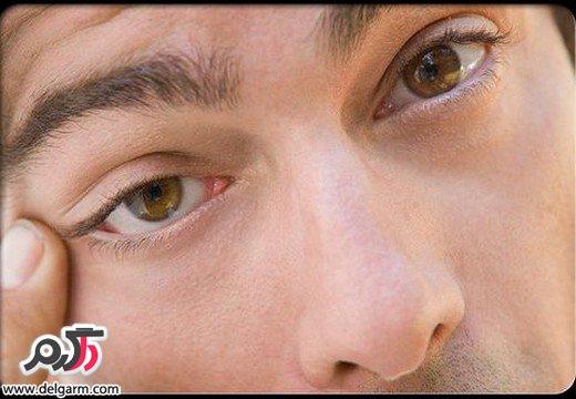 علایم و نشانه های خشکی چشم