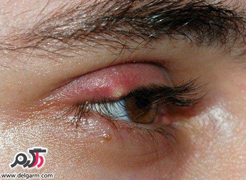 بیماری گلمژه چیست