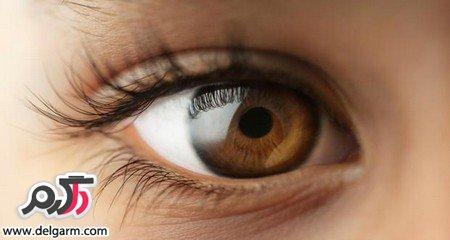 چشمان شما نشانگر این بیماری ها هستند!!