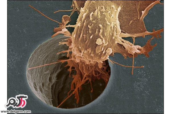 سرطان در بدن