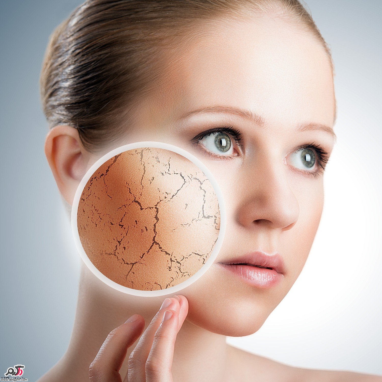 کمبود آب در بدن باعث پوست بیابانی میشود