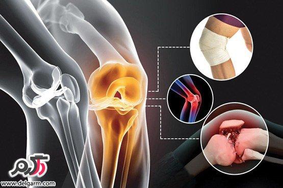 مقدمه ای درباره ی آرتروز و درد زانو