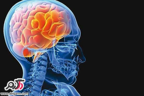 علائم سکته ی مغزی