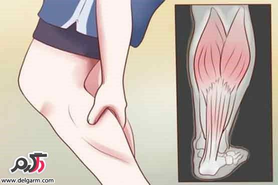 گرفتگی ساق پا چیست؟