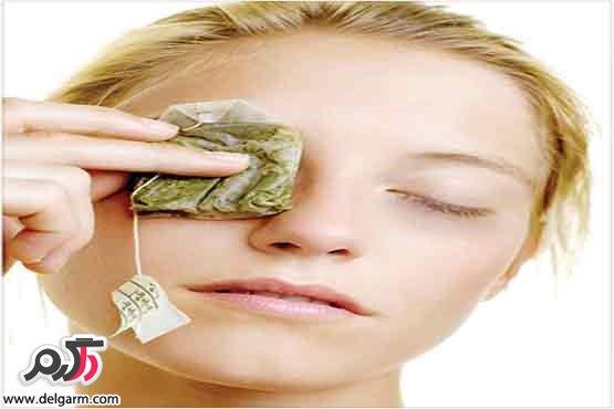 چای کیسه ای برای درمان پف زیر چشم
