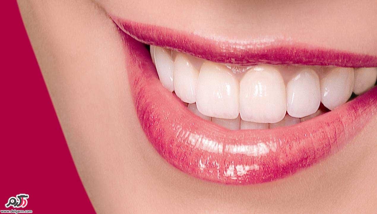 چگونه دندان هایی سفید و درخشنده داشته باشیم؟