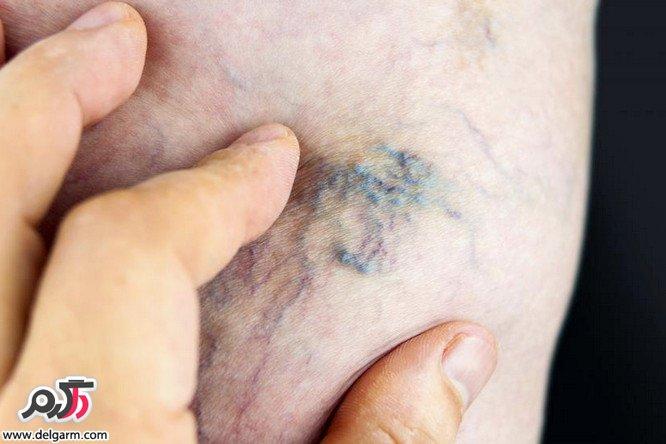 علائم بیماری واریس چیست؟