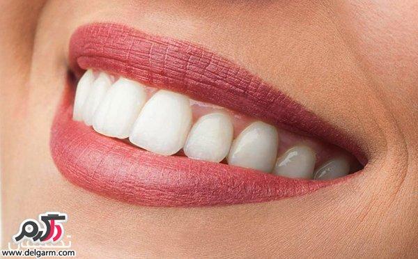 چگونه دندان هایی زیبا و بدون جرم داشته باشیم؟