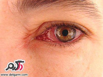 علت عفونت چشم و درمان آن