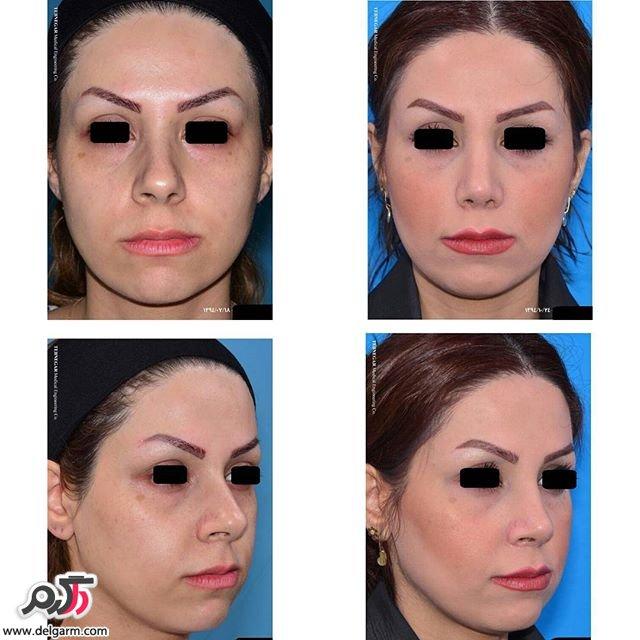 عمل و جراحی زیبایی بینی