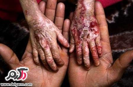 اپیدرمولیز بولوسا یا بیماری پروانه ای