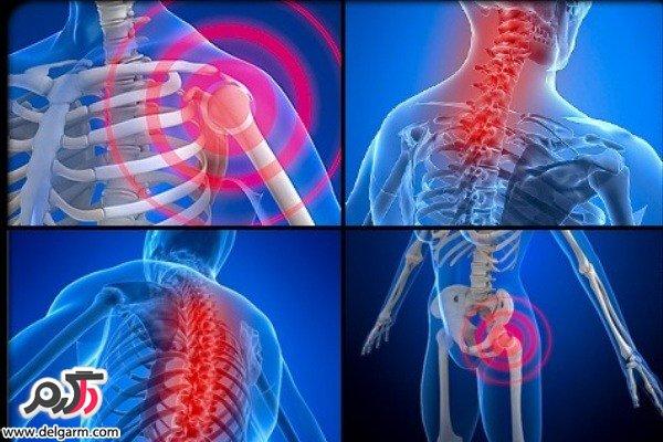 درمان درد استخوان ها