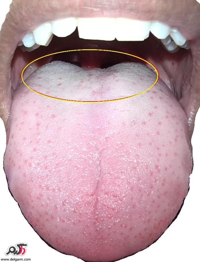 علت تلخی دهان چیست؟