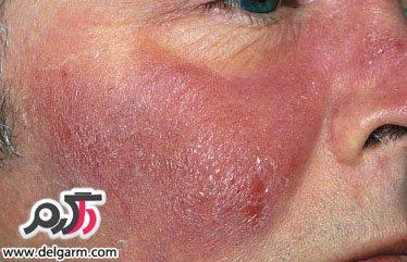 بیماری باد سرخ + درمان