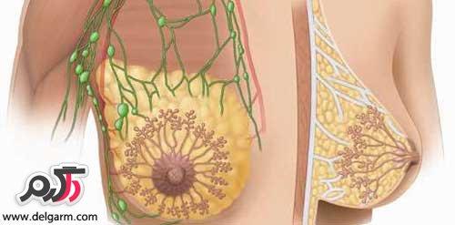 علت التهاب سینه