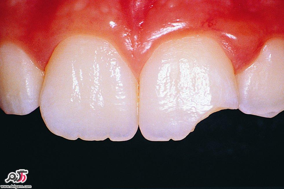 علت شکستن دندان بطور ناگهانی چیست؟