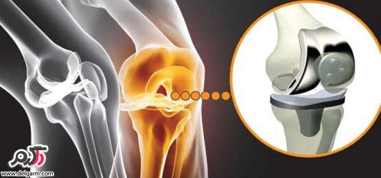 عفونت مفصل مصنوعی چگونه ایجاد میشود