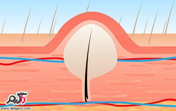 درمان موهای زائد زیر پوست