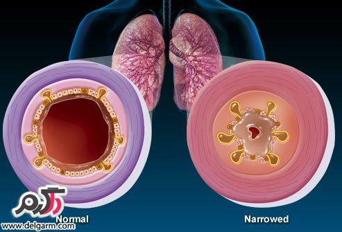 برونشیت: علائم، روش های جلوگیری و درمان