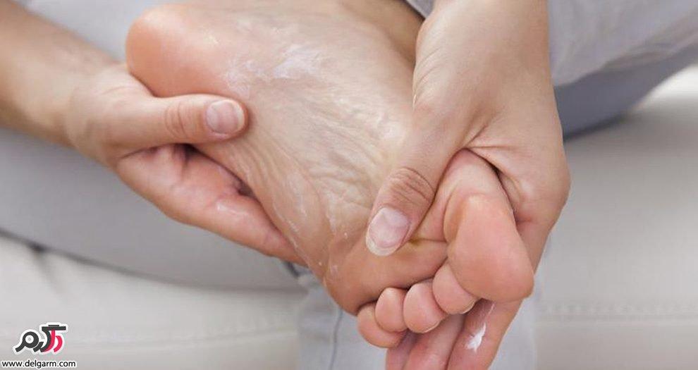 ترک کف پا و توصیههای طب سنتی