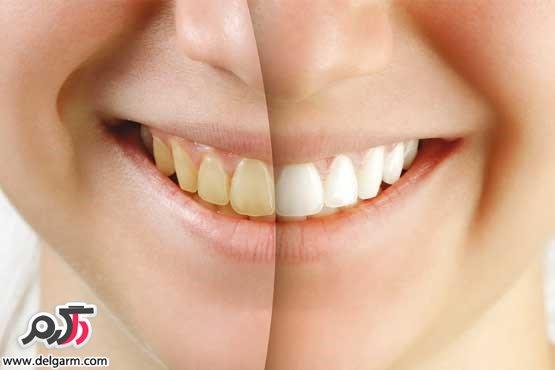 ماده غذایی ایجادکننده جرم دندان