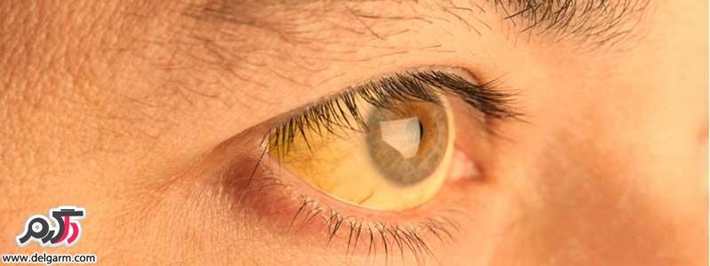 علت زردی اطراف مردمک و سفیده چشم