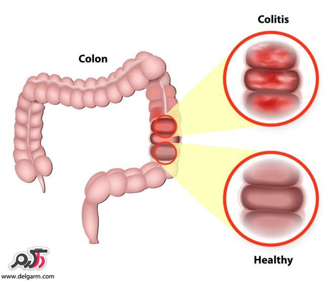 بیماری کوليت اولسراتيو (کولیت زخمی شونده )