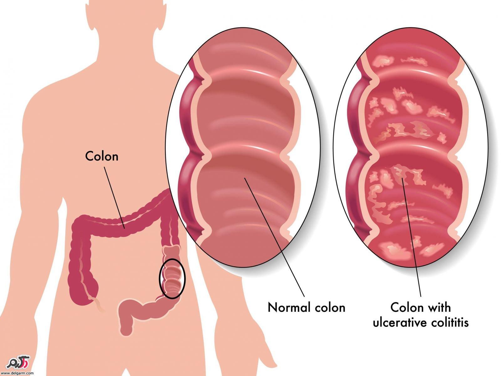 پیشگیری و درمان کولیت زخمی