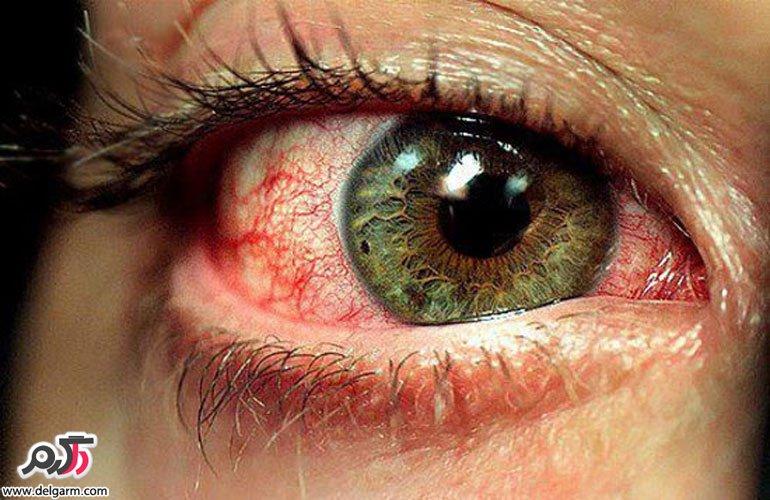 علت پاره شدن رگ های چشم چیست