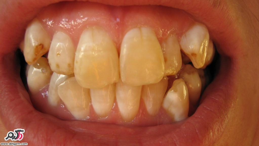 علت لکه قهوه ای روی دندان + درمان