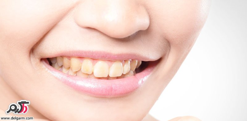 علت ایجاد لکه قهوه ای و زرد روی دندانها