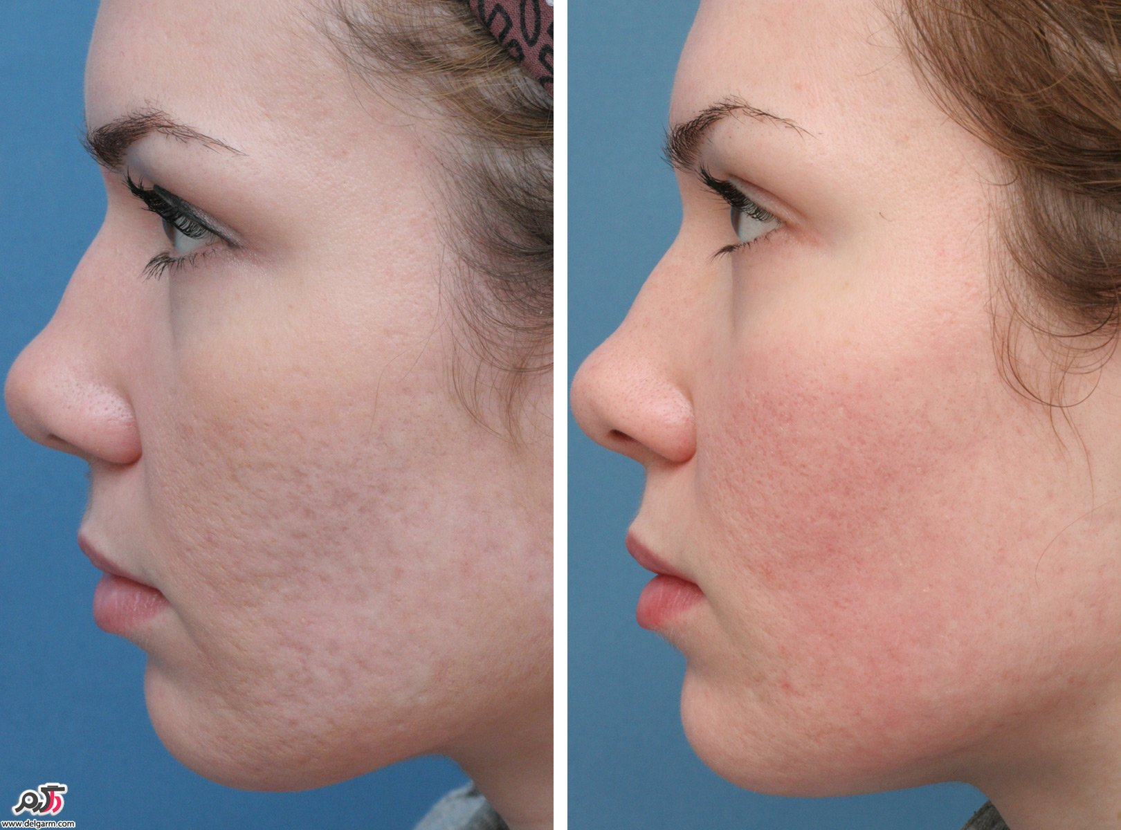 Treatment of acne scars