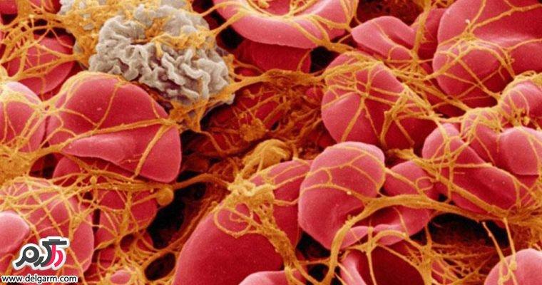 مهترین علت ایجاد لخته در خون و درمان این عارضه