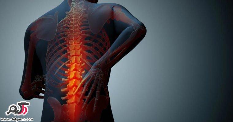 علت چسبندگی مهر های کمر و درمان این عارضه