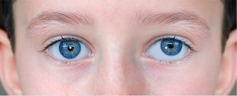 درمان انحراف چشم (لوچی یا استرابیسم)