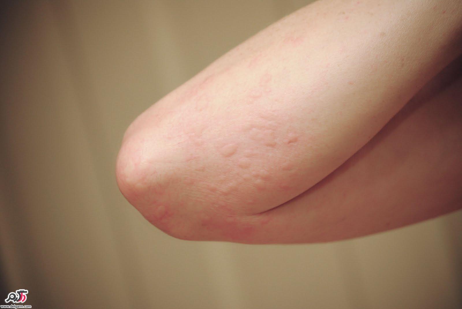 علت عارضه راش پوستی +درمان