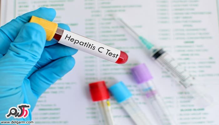 بیماری هپاتیت c