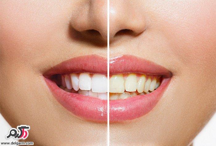 علت بدرنگی دندانها و راههای جلوگیری از آنها