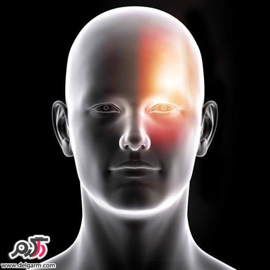 آشنایی با 10 نوع سردرد