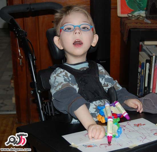 فلج مغزی یا بیماری سی پی (CP) در کودکان و بزرگسالان؛ علت و علائم
