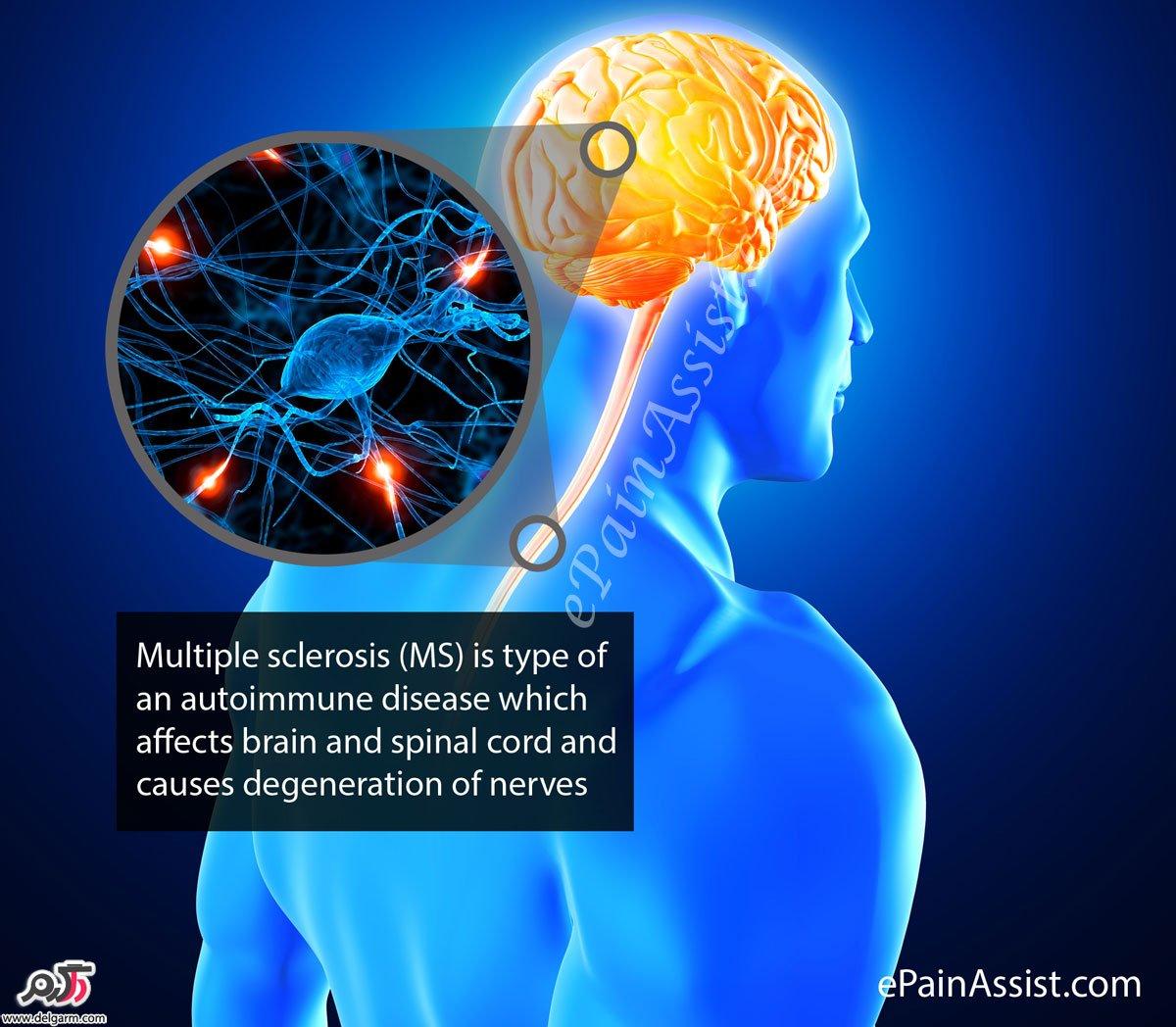 منشاء بیماری ام اس(ms)